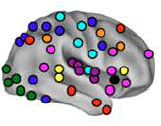 Method of Loci - Neural Correlates of Memory Training in Epilepsy: the Method of Loci