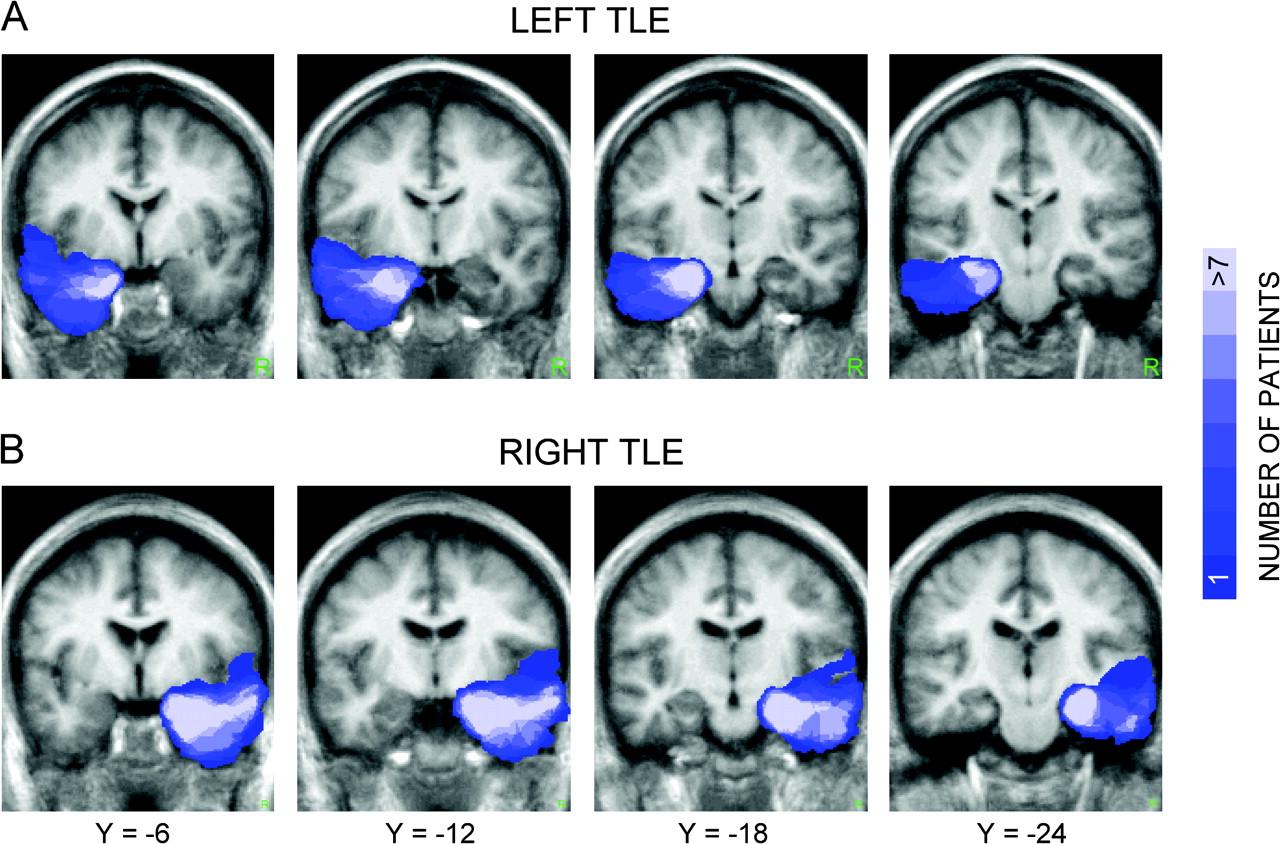 Cerebral Cortex February 2007