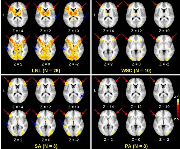 NeuroRadiology November 2005