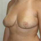 700 gms off each breast 38 C