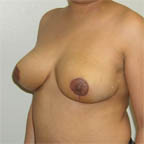 400 gms off each breast 36 C