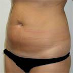 "Lipo of abdomen  5' 8"" 150 lbs."