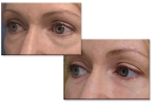 Before, with sagging skin under the eyes....and after  injections to lower eyelids.