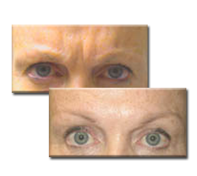 Before, and after Botox injections between the eyes.