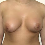 Two different size implants are placed.