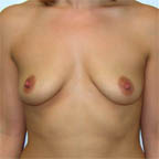 """A """"V"""" shaped cleavage before..."""