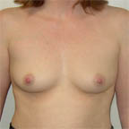 A narrow space between breasts before surgery...
