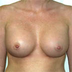 ...will give a narrow cleavage after surgery