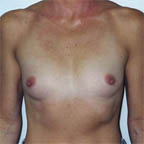 A rounded rib cage with nipples pointing outwards...
