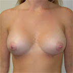...resulting in implants pointing more forward