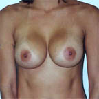 ...will make the implants turn inwards giving a very narrow cleavage