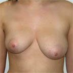 Patient desires right breast to be equal to left side.