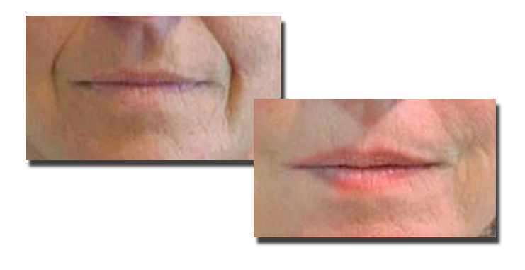 Before Fillers to Nasolabial Folds, and Fourteen Months Post Filler (2cc Juvederm)