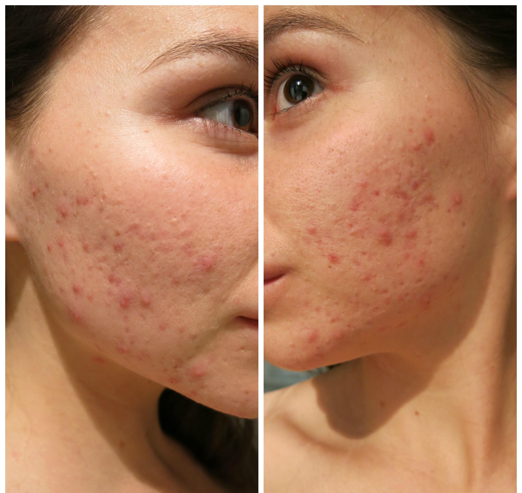 acne på kinderna