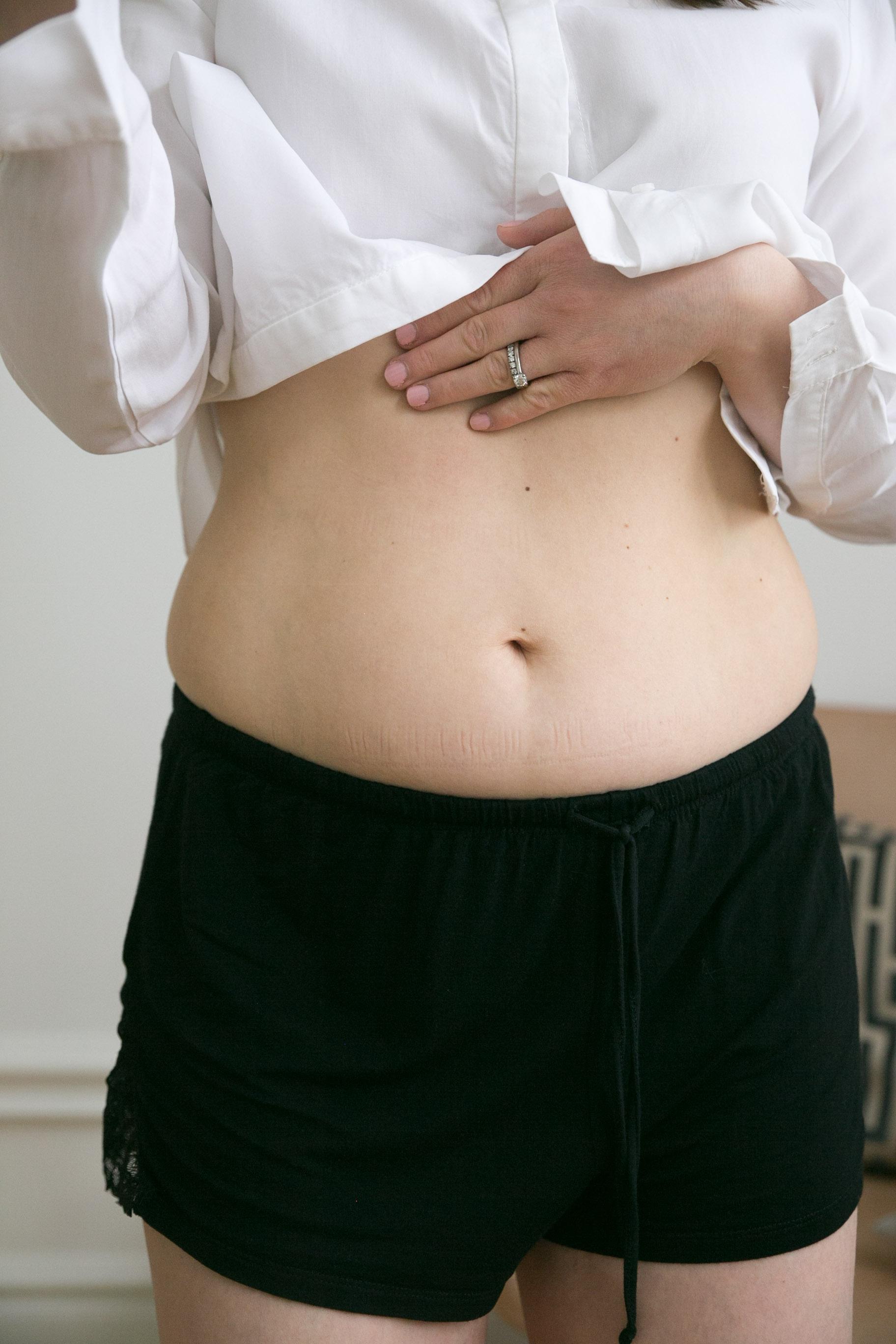 magmuskeldelning efter graviditet diastas.jpg