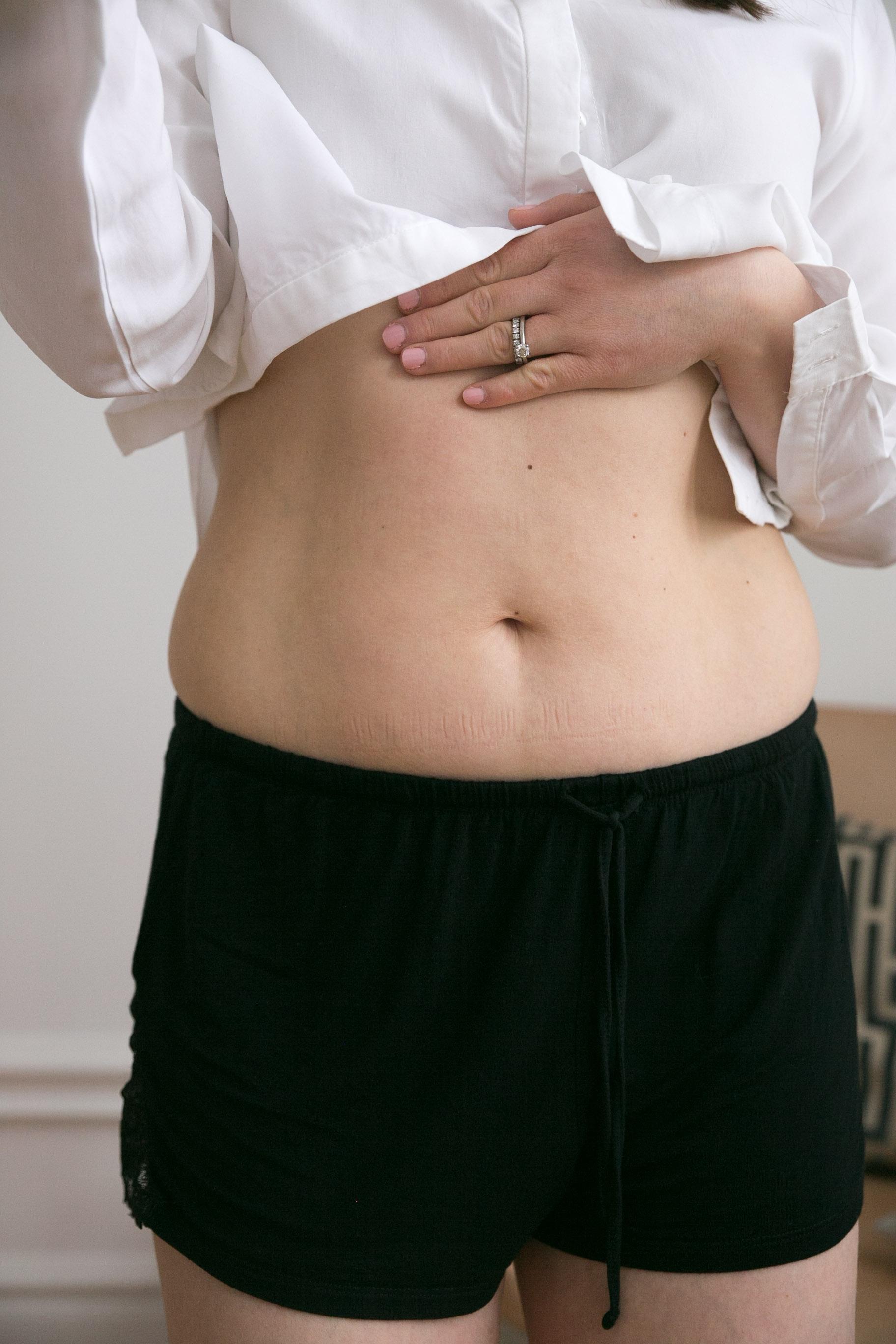 magmuskeldelning efter graviditet magmuskler.jpg