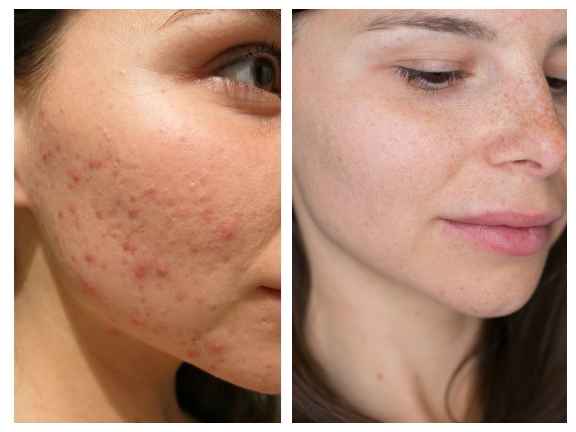 acne fore efter bli av med acne.jpg