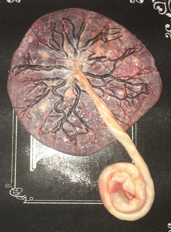 alkhemi's placenta.JPG