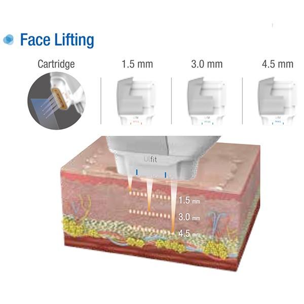 face-lifting (1).jpg