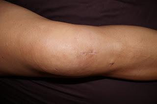 swollen knee.JPG