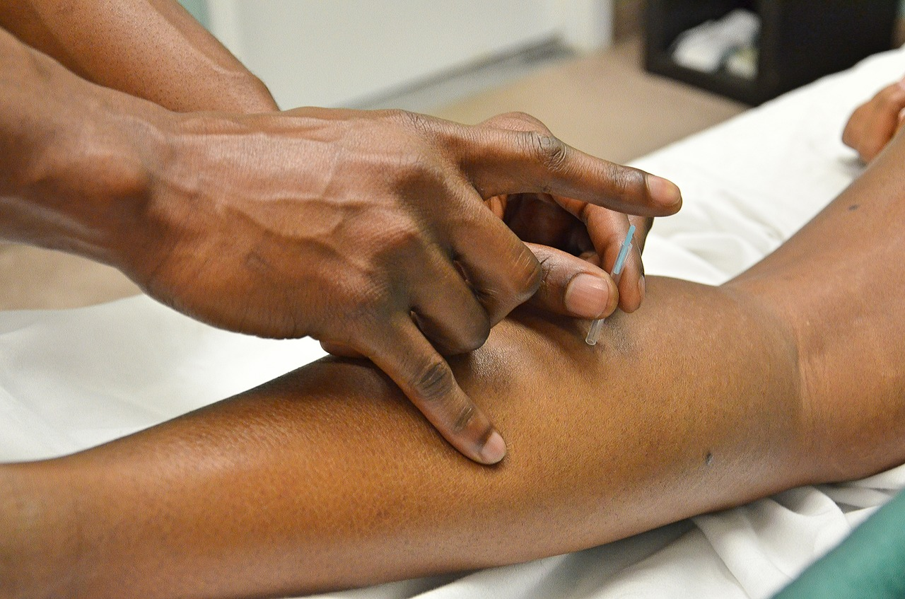 Follow Up Visit  (45-60 min) - Will include a short intake and acupuncture treatment. Depending on your specific case, it may include other modality treatments, such as cupping, moxibustion, electro-stimulation or guasha -  $70