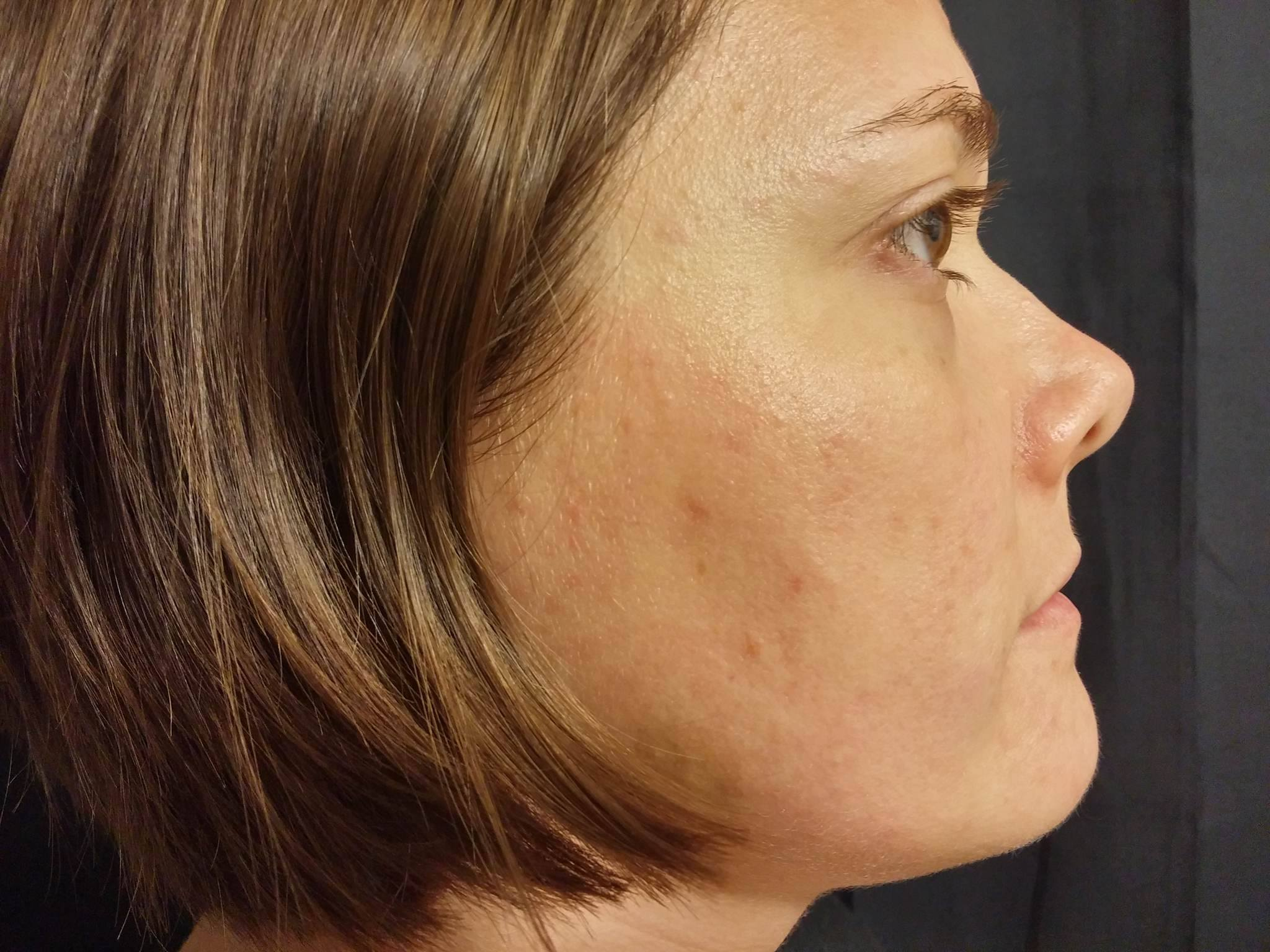 Rosacea-Before