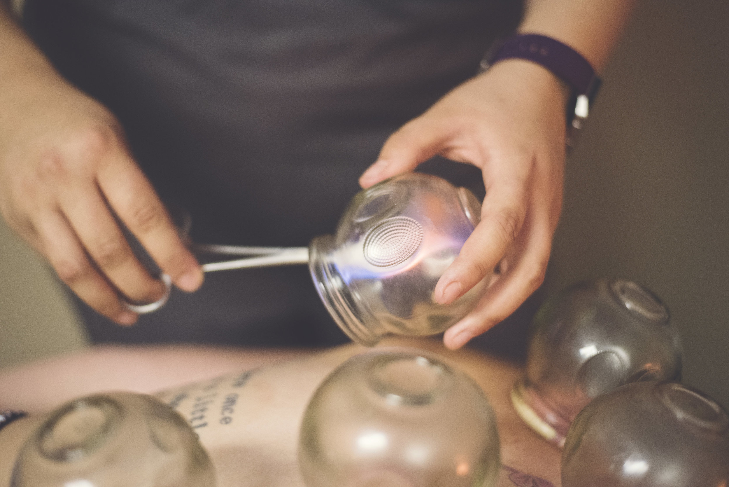Cupping Session   All Visits (20-30 min) -  $35