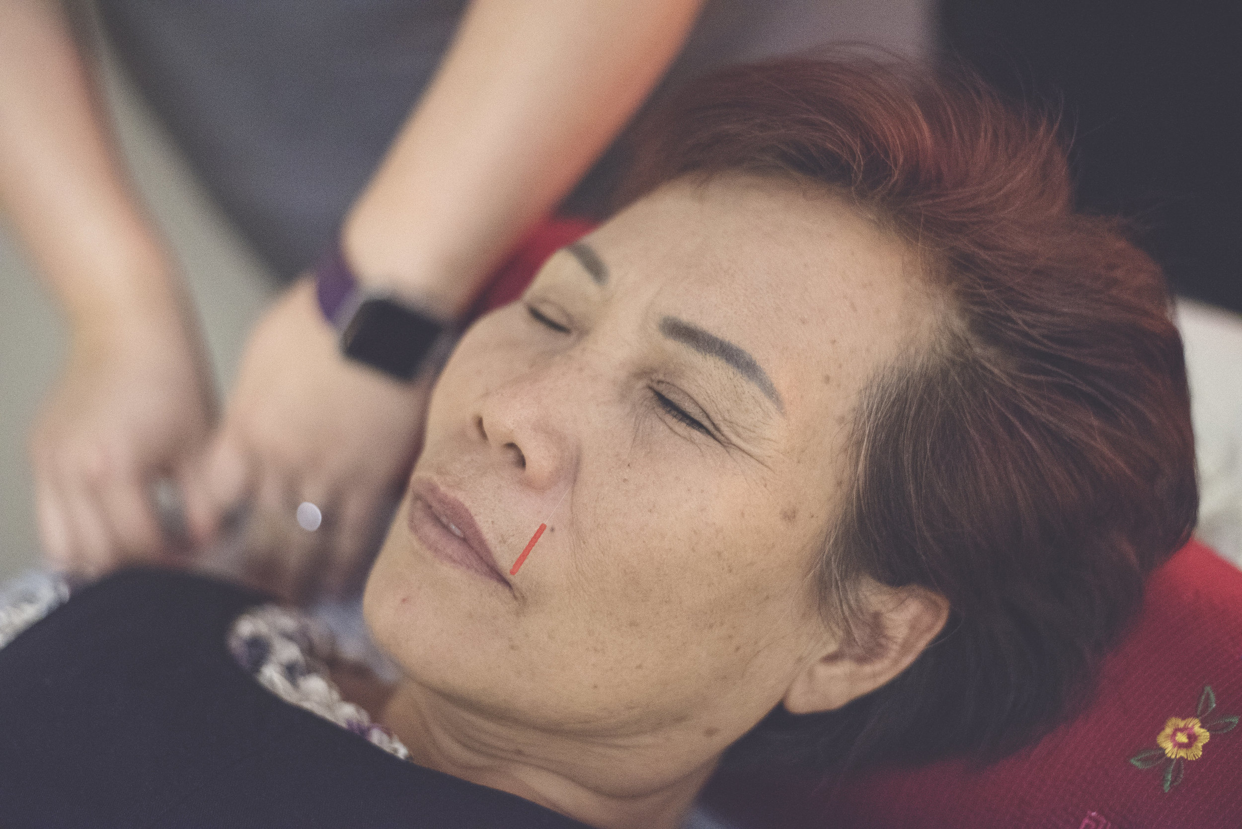 Mei Zen Cosmetic Acupuncture Package Deal  (10 Visits) -  $680 ($120 Savings)