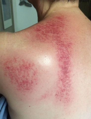 Gua-Sha technique shows problem area's by the redness known as Petechiae