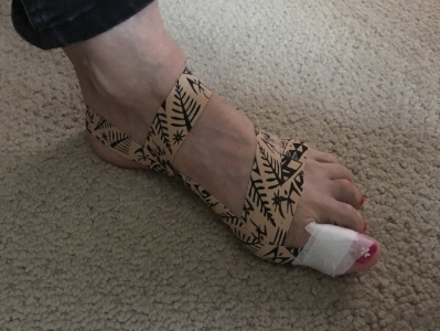 Example of taping one of my clients Bunion
