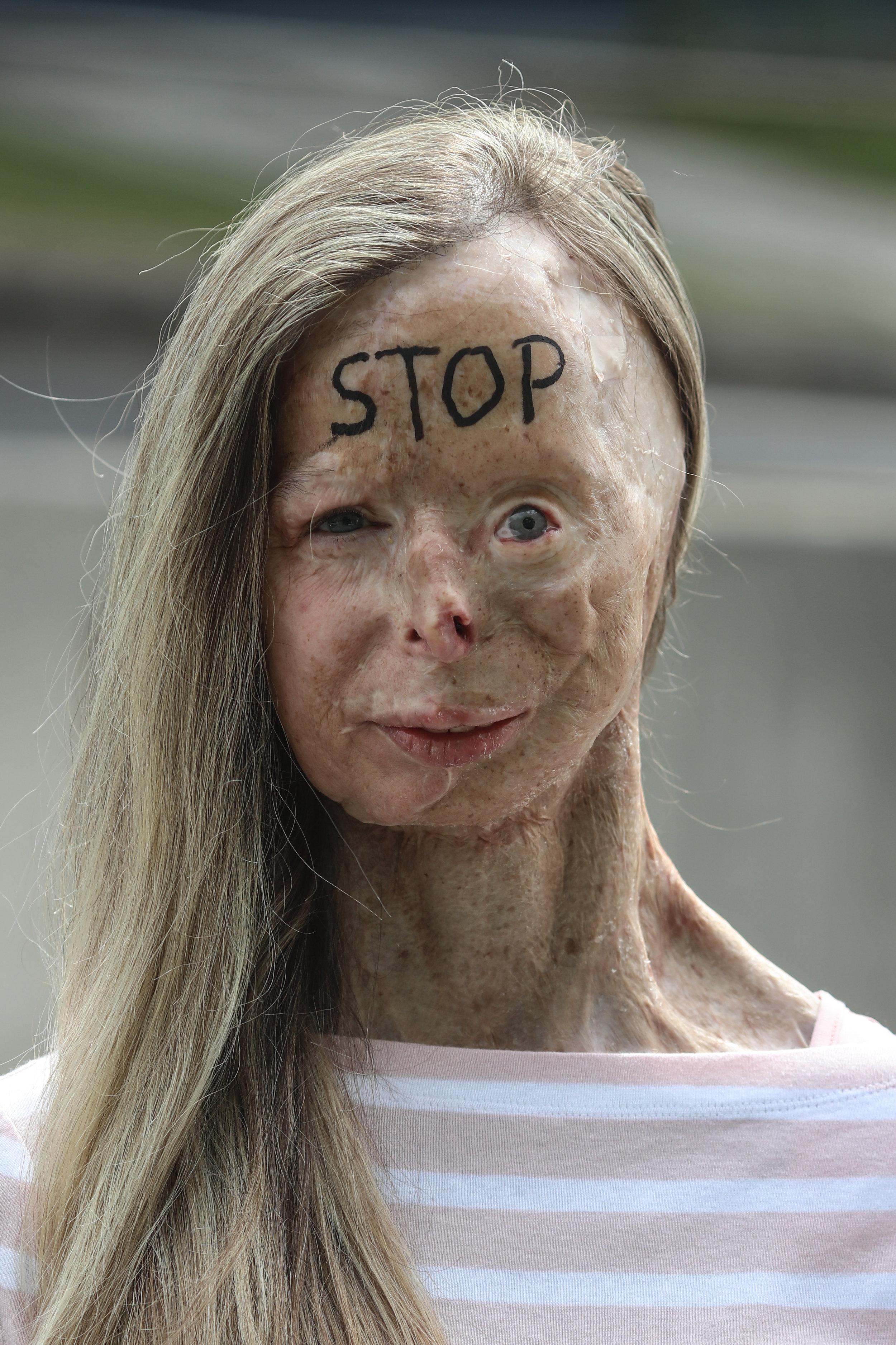 Patricia Lefranc - Ambassadrice One Word pour la BelgiqueStop à la vente libre de l'acide.