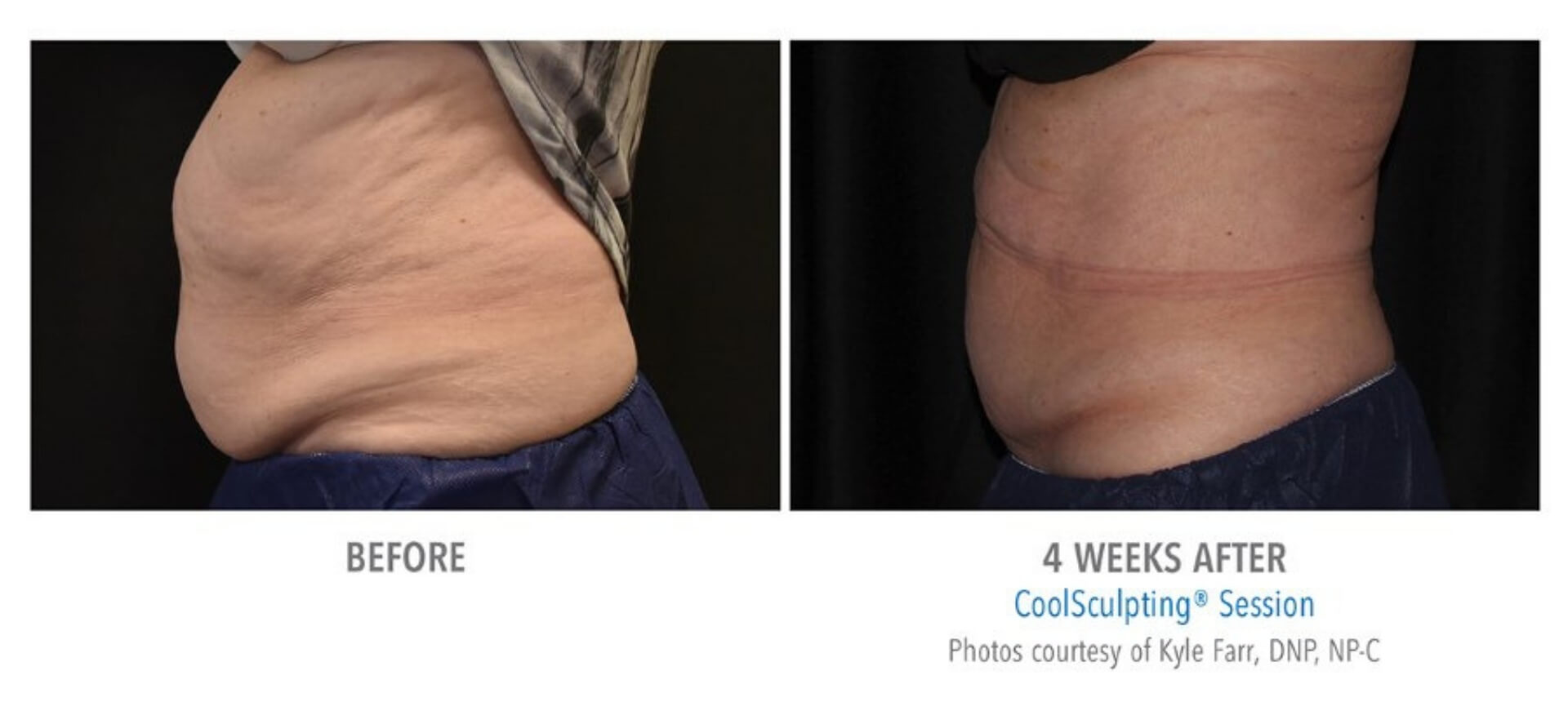 coolsculpting-before-and-after-photos-6.jpg