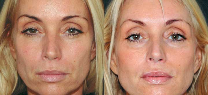 fillers-before-after-2.jpg