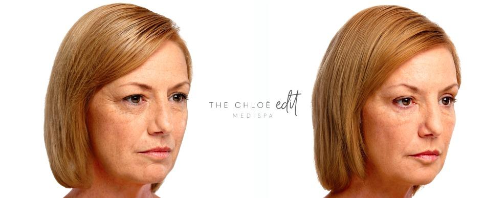 Profhilo® — The Chloe Edit