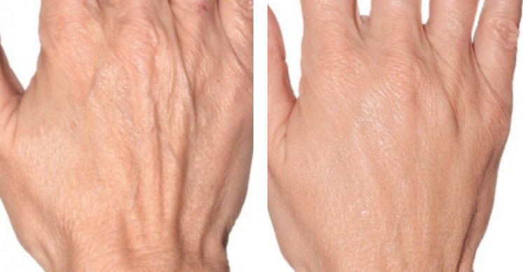 profhilo-for-ageing-hands.jpg