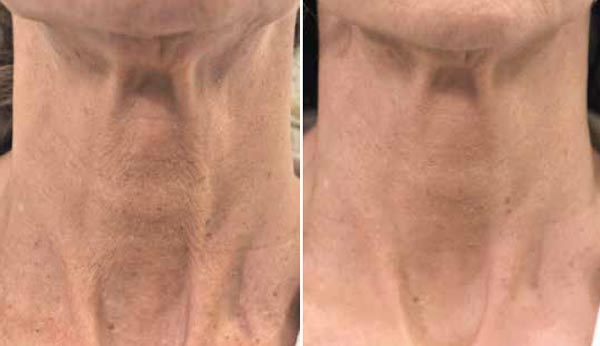 profilo-neck-before-and-after.jpg