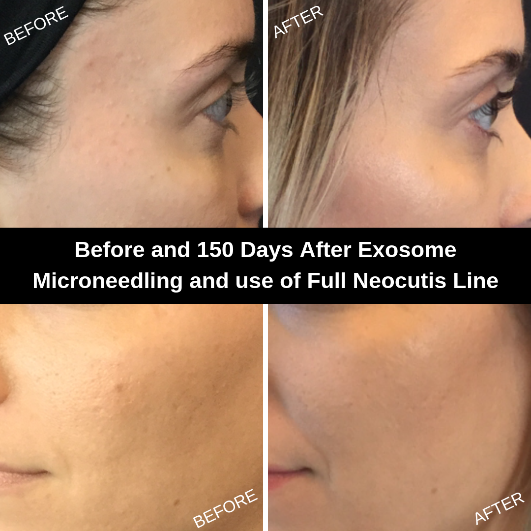Microneedling and Neocutis Before (Left) and 5 Months After (Right)