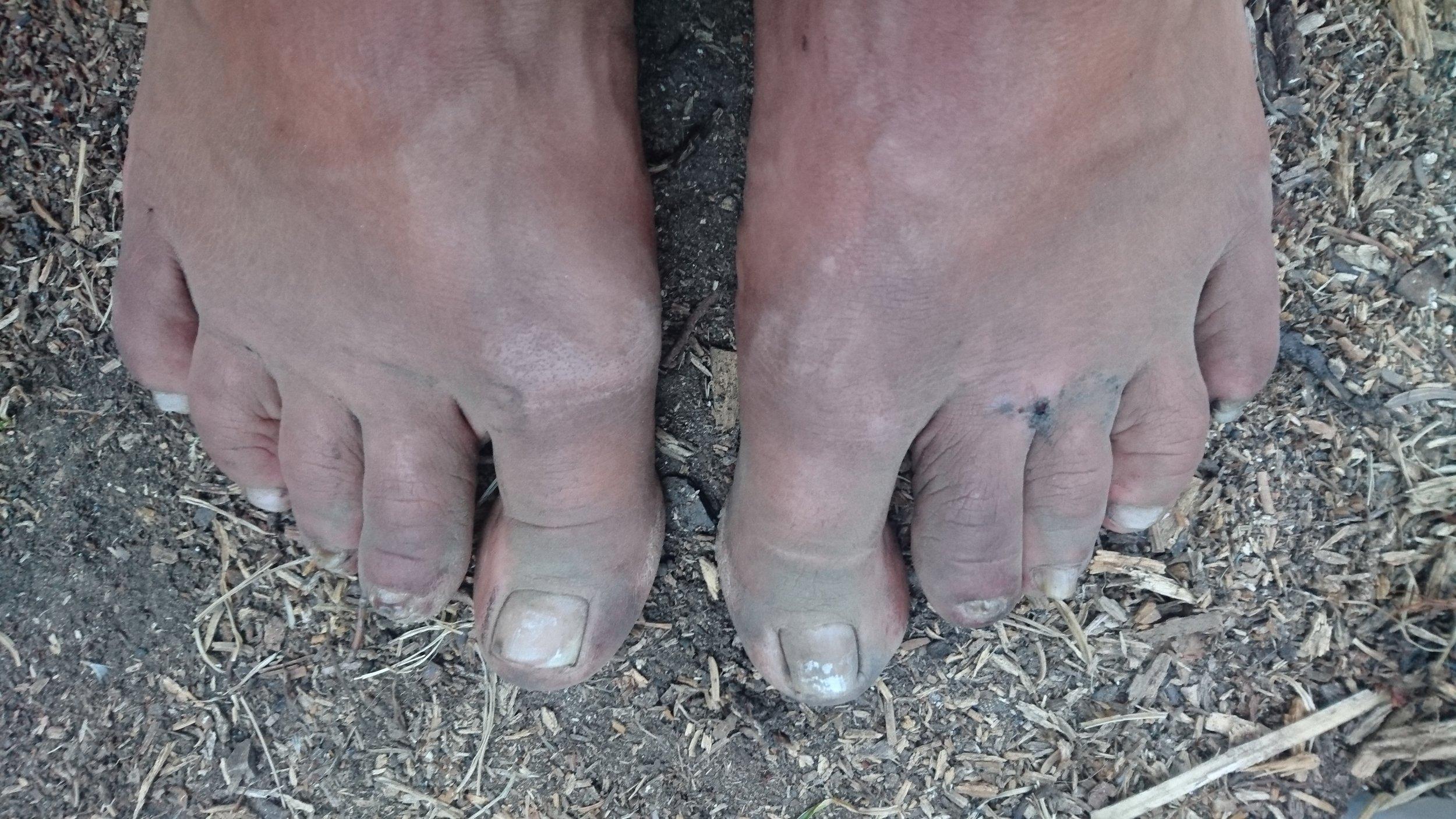 Feet after a long hikingday; kinda grimy..