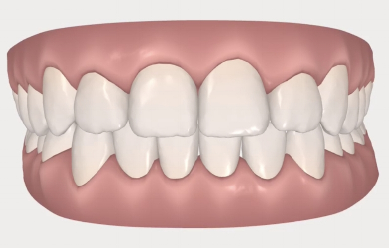Where my teeth will be after the treatment is completed.