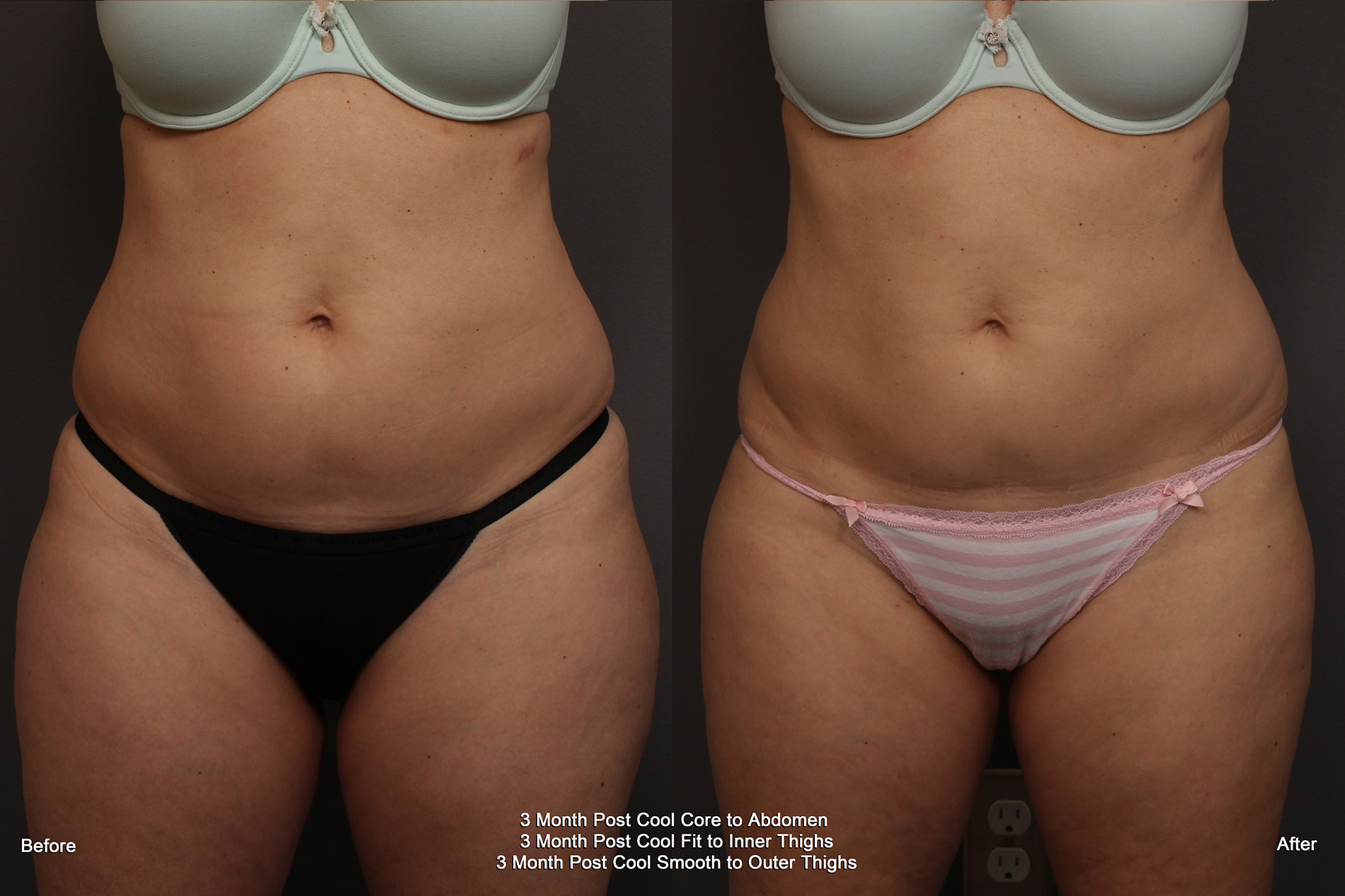 Before and After CoolSculpting Results from Werschler Aesthetics in Spokane, WA