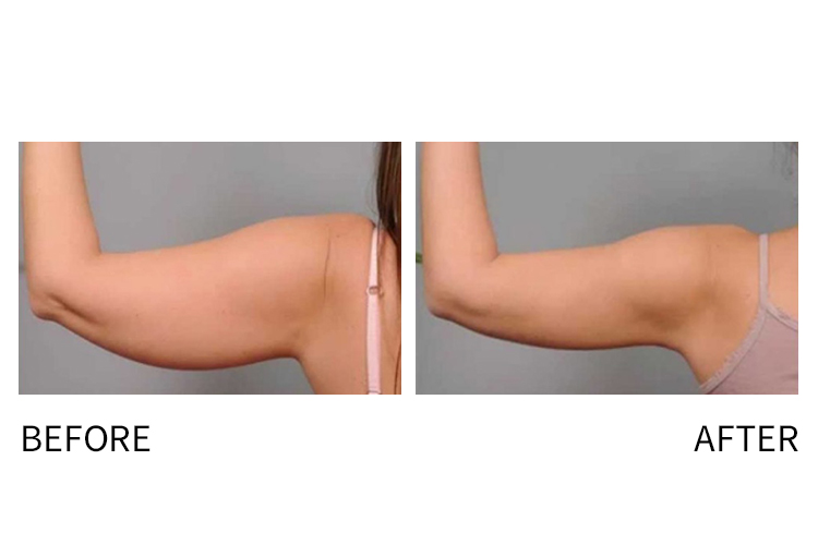 CoolSculpting available at Werschler Aesthetics