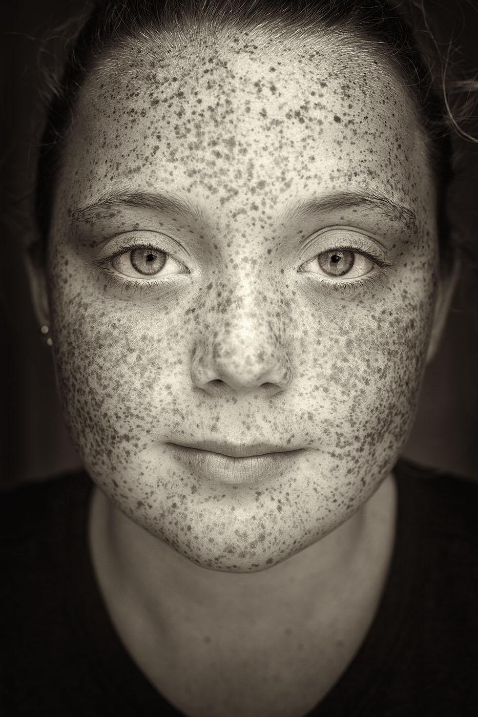 Judith Minks_Netherlands_Freckles_6.jpg