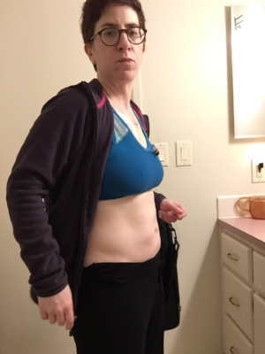 """THis is me a couple of hours later. My """"before"""" and """"after"""" shots aren't great because I was so tired at this point - after midnight before i felt like I could finally lay down without being in pain. I can tell my face is more relaxd in this photo - less pain."""