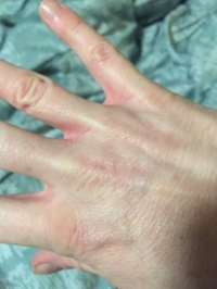 """This is my """"baseline"""" - what my hand SHOULD look like. I took this after giving myself fluids. I determine my hydration status by several things - but my hand is a quick marker."""