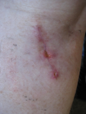 Nov '10 First surgery. you can see the wound starting to open up because I walked on it too much too early.