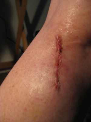 Jan '11 Second surgery? Not positive but I think this is the second surgery scar.I never thought in a million years I'd share these publicly!