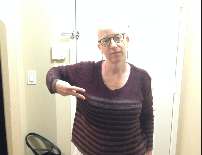 The date on this is 10-10-14 which means it was taken a couple of weeks after chemo ended. I have very few photos of my bald head! This is one of them.