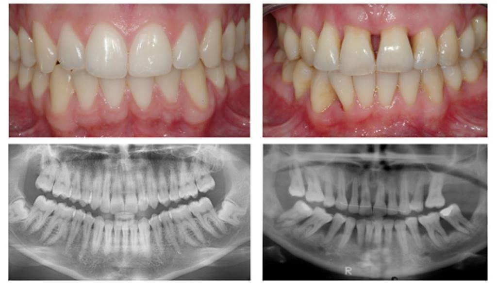periodontia.jpg