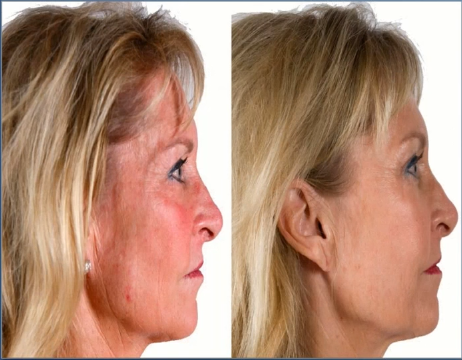 What the right kind of growth factor signaling can do… - Before and After using the AnteAGE Serum and Accelerator (which are both replete with bone marrow derived stem cell growth factors)