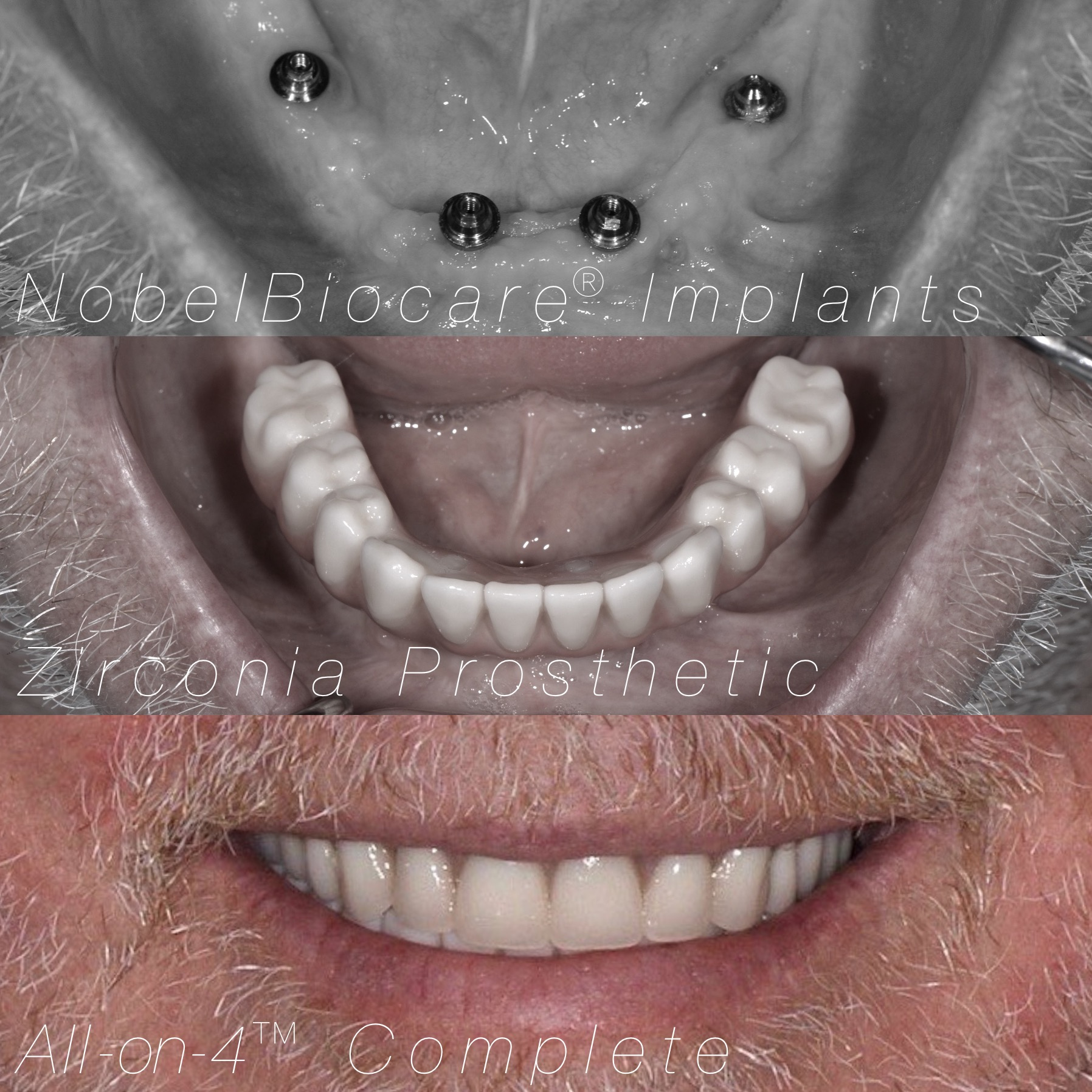 All-on-4 case by Dr. Heldt